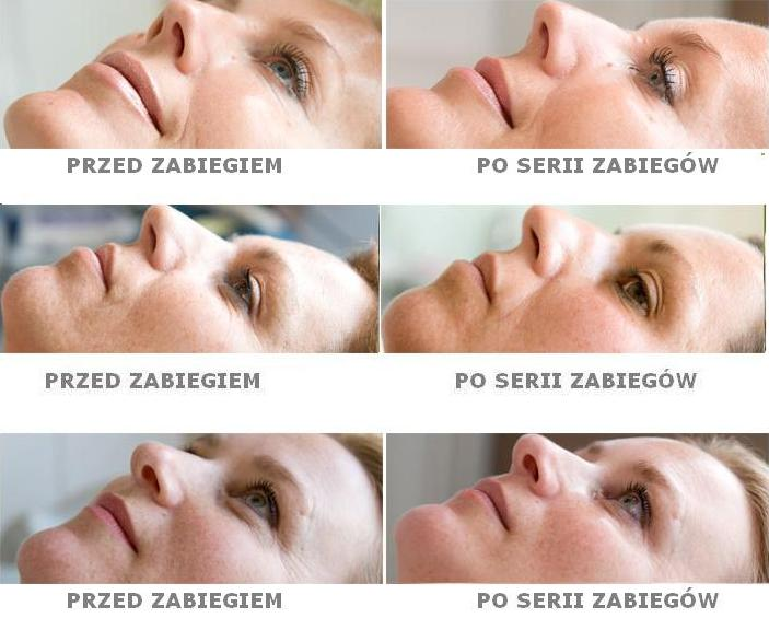 dermaoxy-przed-i-po